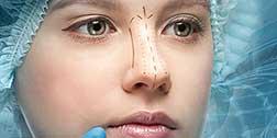 burun-estetigi-ameliyati-oncesi-bilinmesi-gerekenler