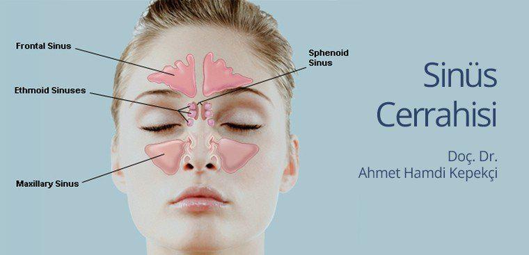 sinus-cerrahisi